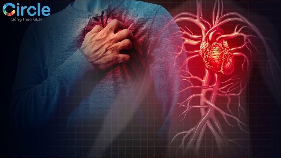 Bệnh tim mạch là gi? Dấu hiệu của bệnh tim mạch như thế nào?