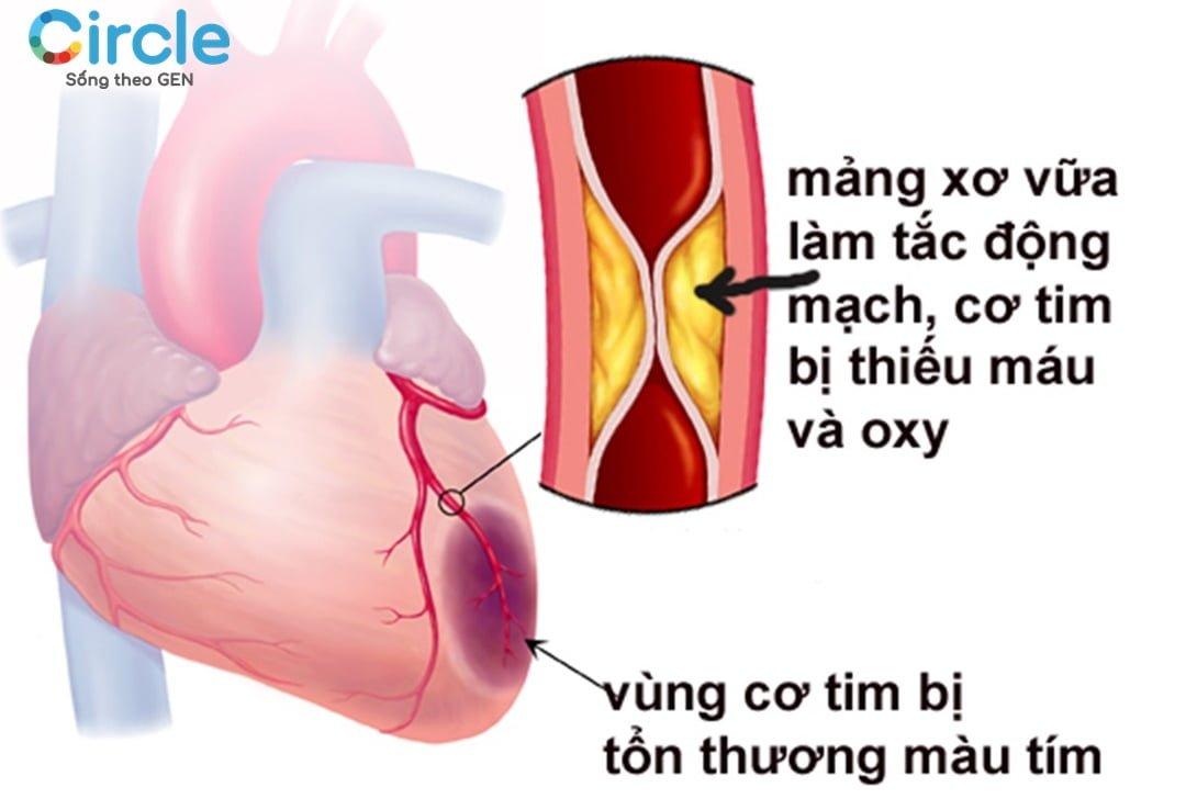 Xơ vữa động mạch là yếu tố gây nguy cơ bệnh tim mạch.