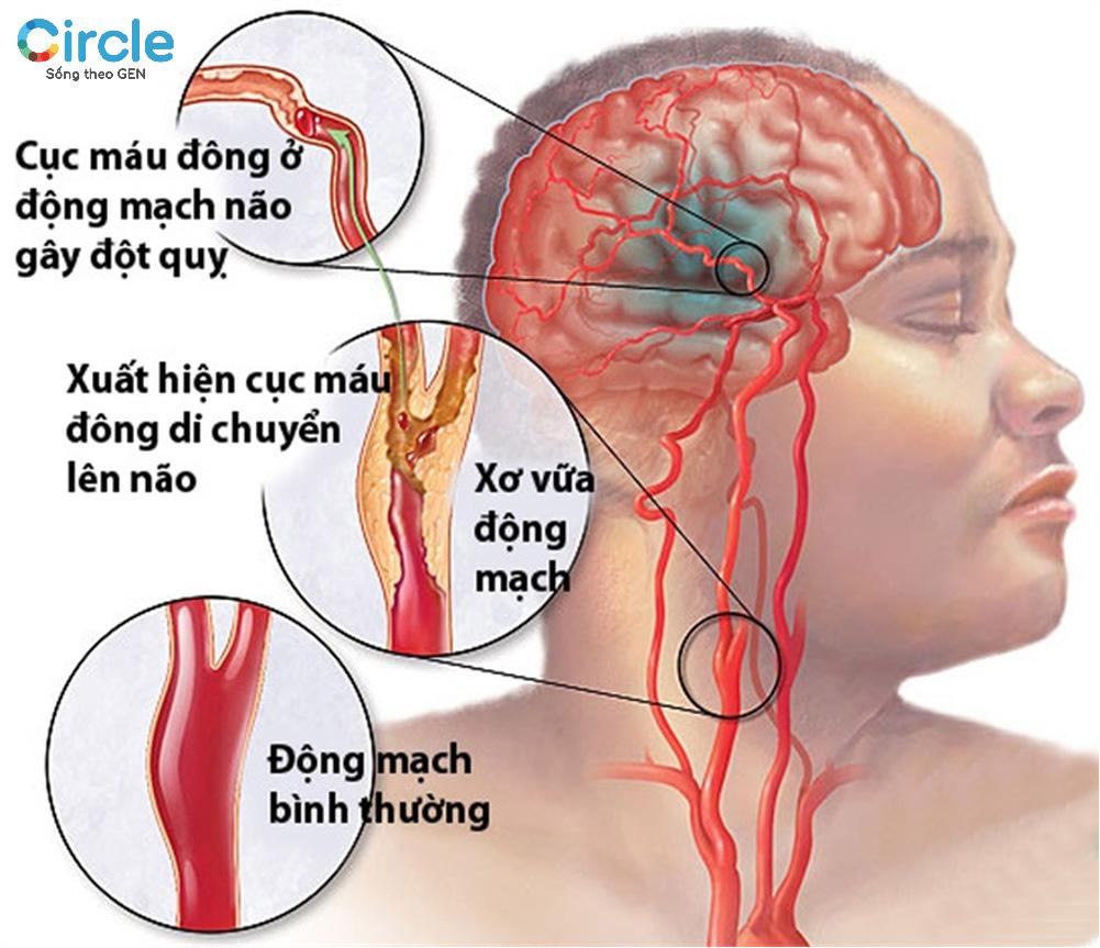 Đột quỵ do tắt nghẽn mạch máu não