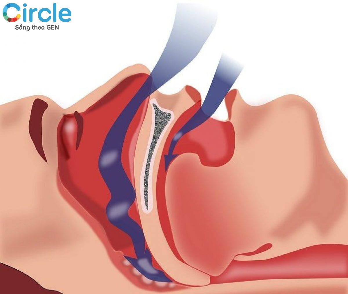 Chứng ngưng thở khi ngủ mang lại những hệ quả vô cũng nguy hiểm cho người mắc phải, do đó cần sớm được điều trị.