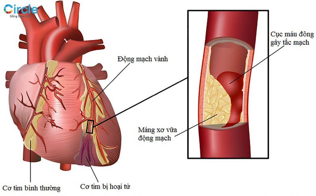 Cholesterol cao trong nhiều trường hợp. Biến chứng là gây tắt nghẽn mạch máu dẫn đến đau tim