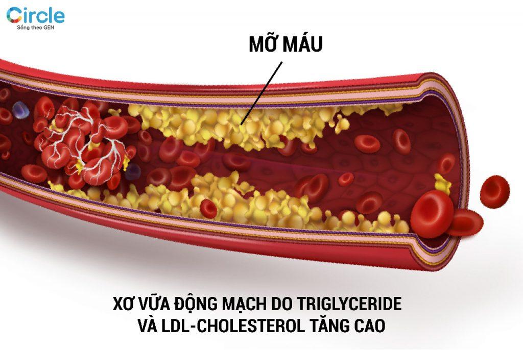 Xơ vữa động mạch là bệnh lý thường gặp khi cholesterol tăng cao